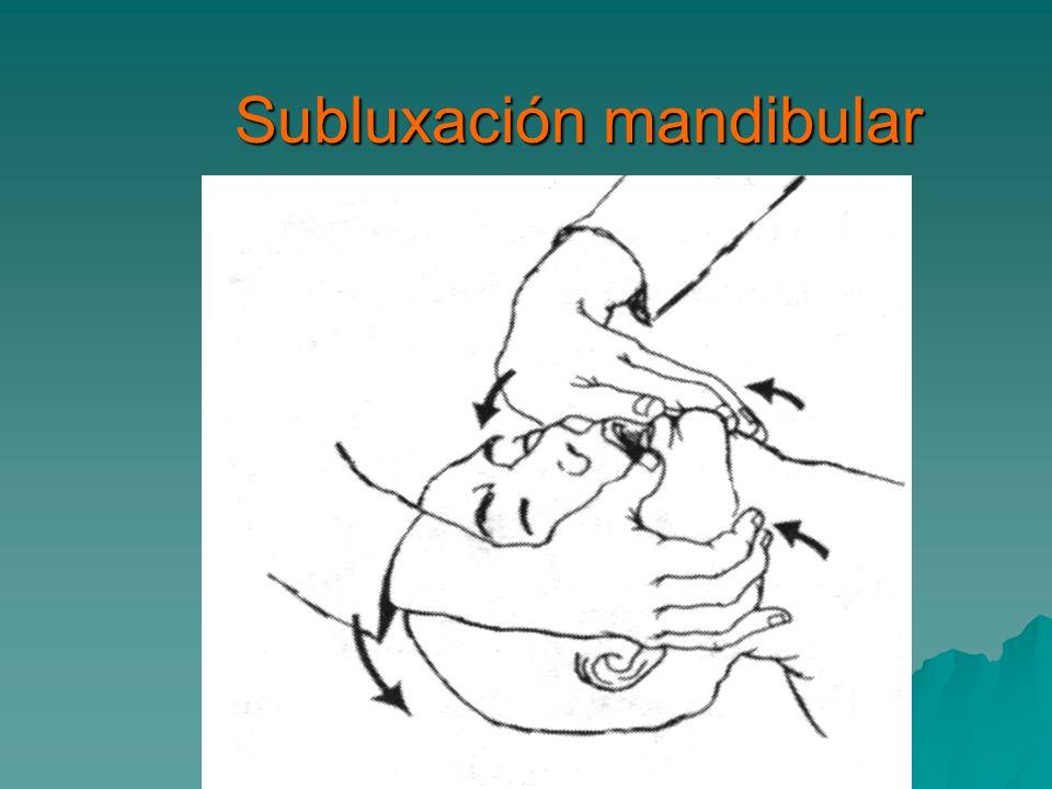 Subluxación mandibular