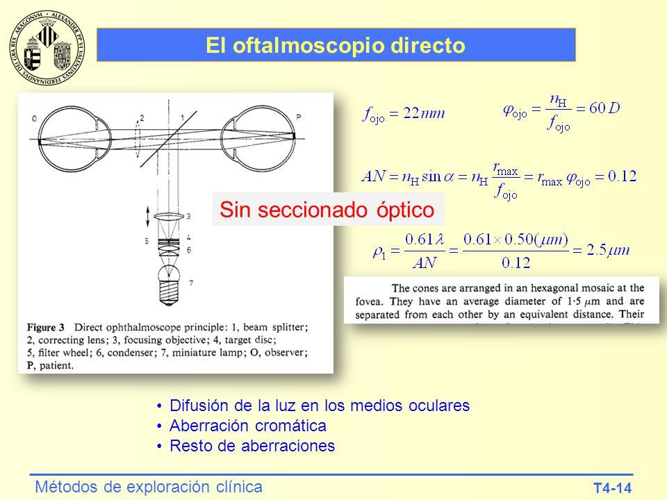 T4-14 Métodos de exploración clínica El oftalmoscopio directo Difusión de la luz en los medios oculares Aberración cromática Resto de aberraciones Sin