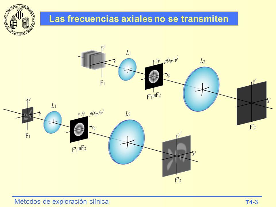 T4-3 Métodos de exploración clínica Las frecuencias axiales no se transmiten