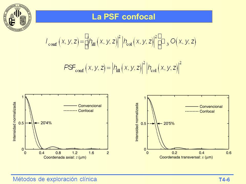 T4-6 Métodos de exploración clínica La PSF confocal
