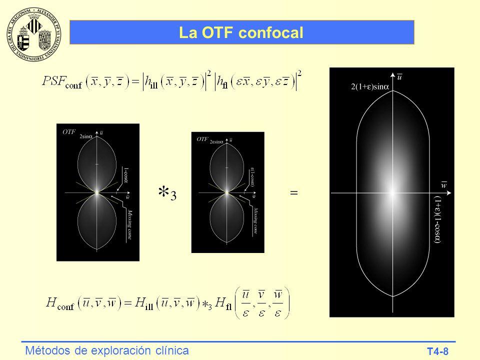 T4-8 Métodos de exploración clínica La OTF confocal