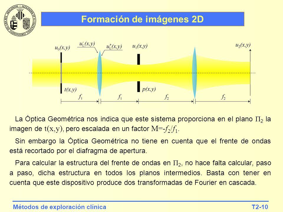 T2-10Métodos de exploración clínica Formación de imágenes 2D La Óptica Geométrica nos indica que este sistema proporciona en el plano 2 la imagen de t