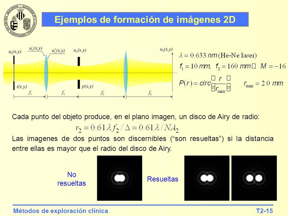 T2-15Métodos de exploración clínica Ejemplos de formación de imágenes 2D Cada punto del objeto produce, en el plano imagen, un disco de Airy de radio: