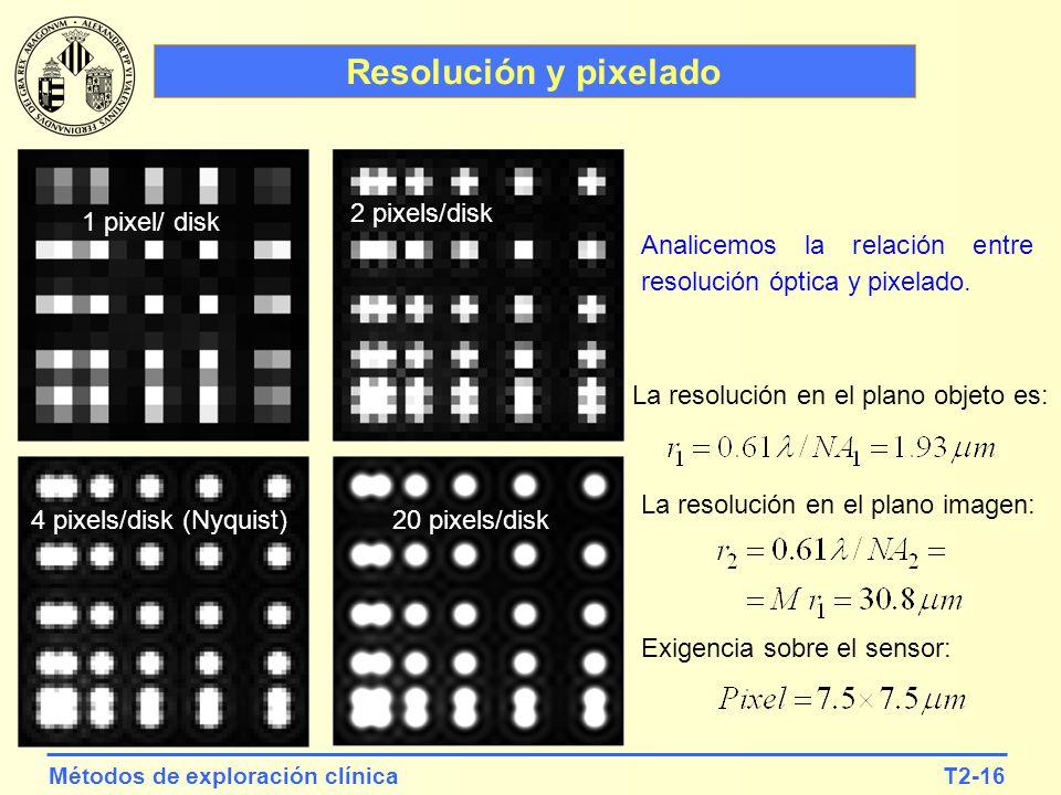 T2-16Métodos de exploración clínica Resolución y pixelado 1 pixel/ disk 2 pixels/disk 4 pixels/disk (Nyquist)20 pixels/disk La resolución en el plano