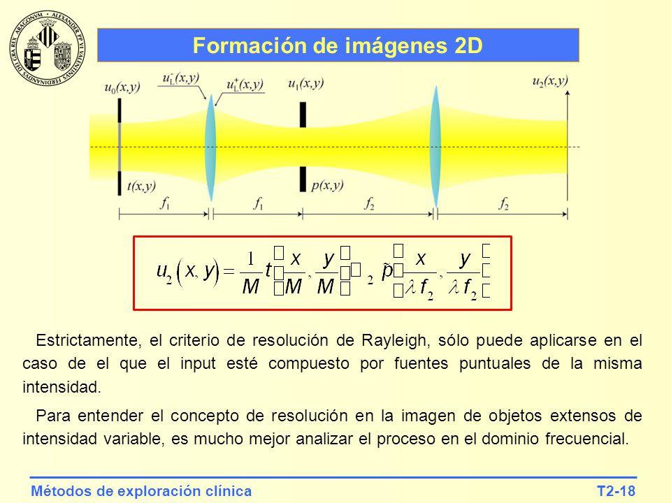 T2-18Métodos de exploración clínica Formación de imágenes 2D Estrictamente, el criterio de resolución de Rayleigh, sólo puede aplicarse en el caso de