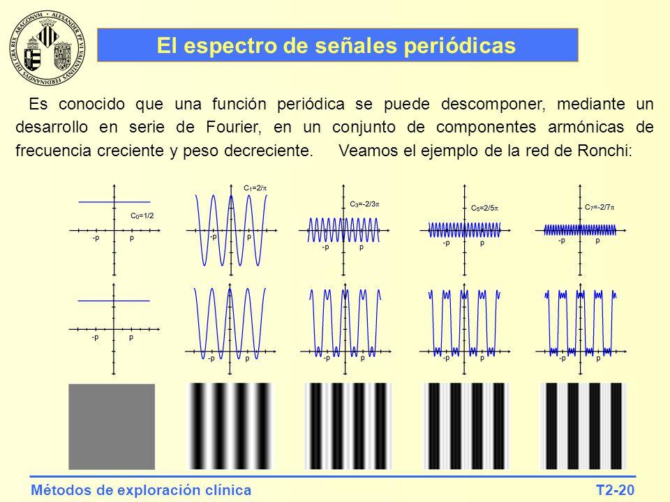 T2-20Métodos de exploración clínica El espectro de señales periódicas Es conocido que una función periódica se puede descomponer, mediante un desarrol