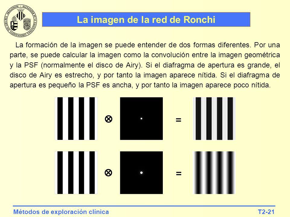T2-21Métodos de exploración clínica La imagen de la red de Ronchi La formación de la imagen se puede entender de dos formas diferentes. Por una parte,