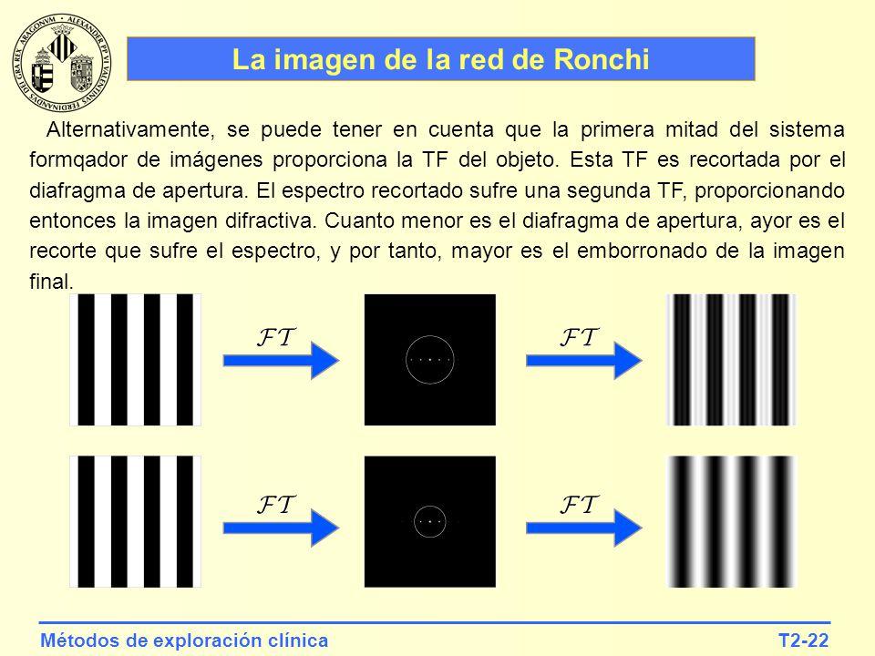 T2-22Métodos de exploración clínica La imagen de la red de Ronchi Alternativamente, se puede tener en cuenta que la primera mitad del sistema formqado