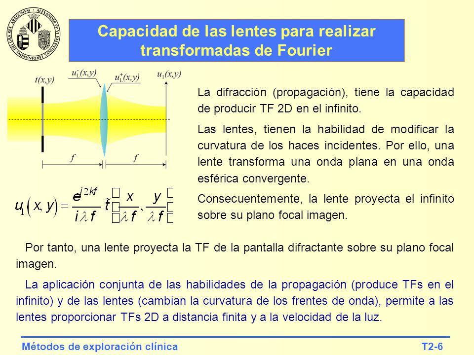 T2-17Métodos de exploración clínica iPhone 5 F#=2.4 NA 2 =0.21 3264x2449 px p=1.4 m r 2 =1.7 m 1.2 px/disk (resolución impuesta por el sensor) Leika M Monochrom NA 2 =0.21 5212x3468 px p=7.0 m r 2 =1.7 m 0.25 px/disk (resolution is imposed by sensor) Ejemplos de resolución y pixelado.
