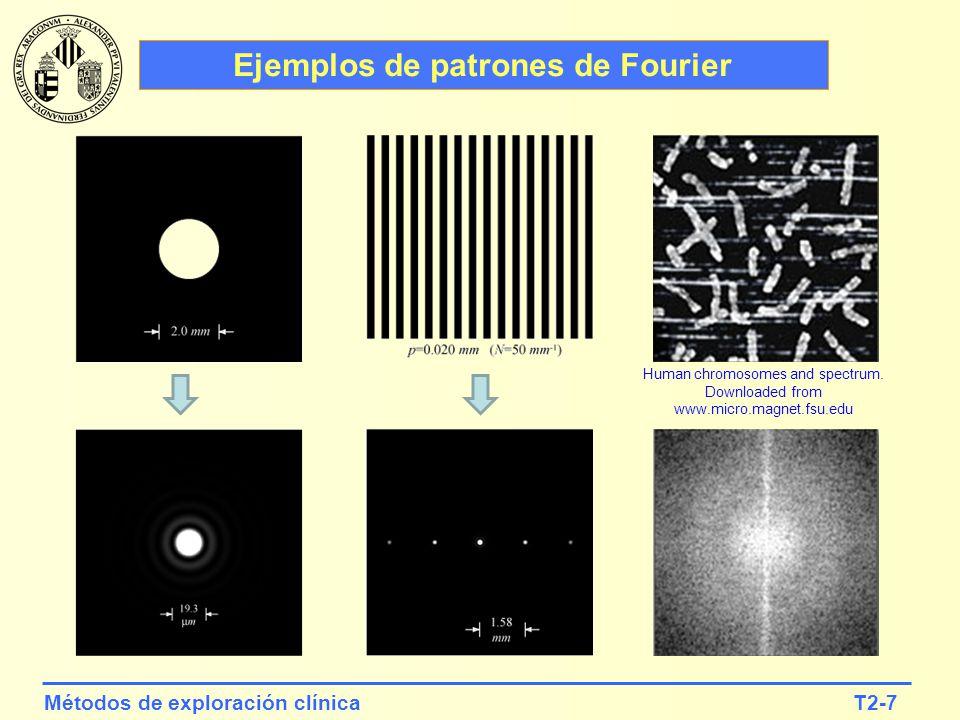 T2-8Métodos de exploración clínica El espectro de señales periódicas Es conocido que una función periódica se puede descomponer, mediante un desarrollo en serie de Fourier, en un conjunto de componentes armónicas de frecuencia creciente y peso decreciente.