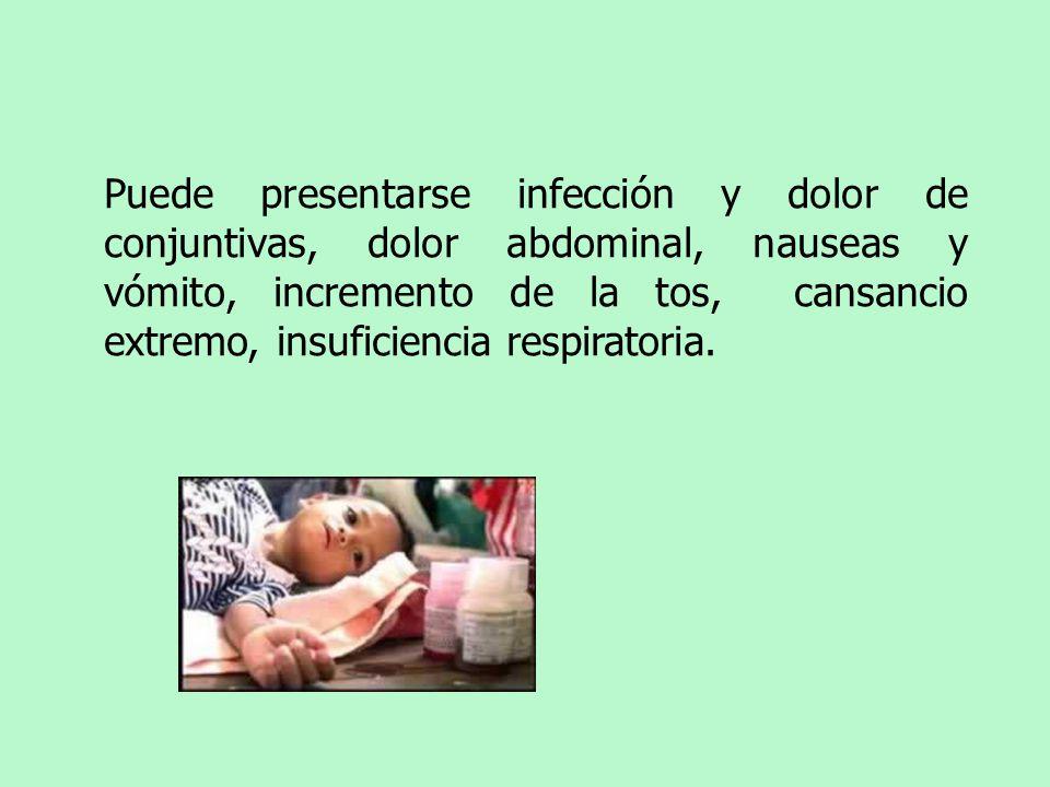 Puede presentarse infección y dolor de conjuntivas, dolor abdominal, nauseas y vómito, incremento de la tos, cansancio extremo, insuficiencia respirat