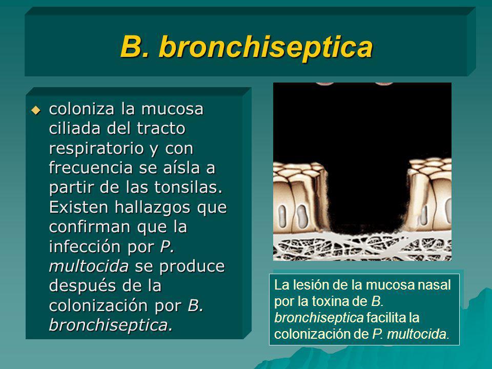 B. bronchiseptica coloniza la mucosa ciliada del tracto respiratorio y con frecuencia se aísla a partir de las tonsilas. Existen hallazgos que confirm