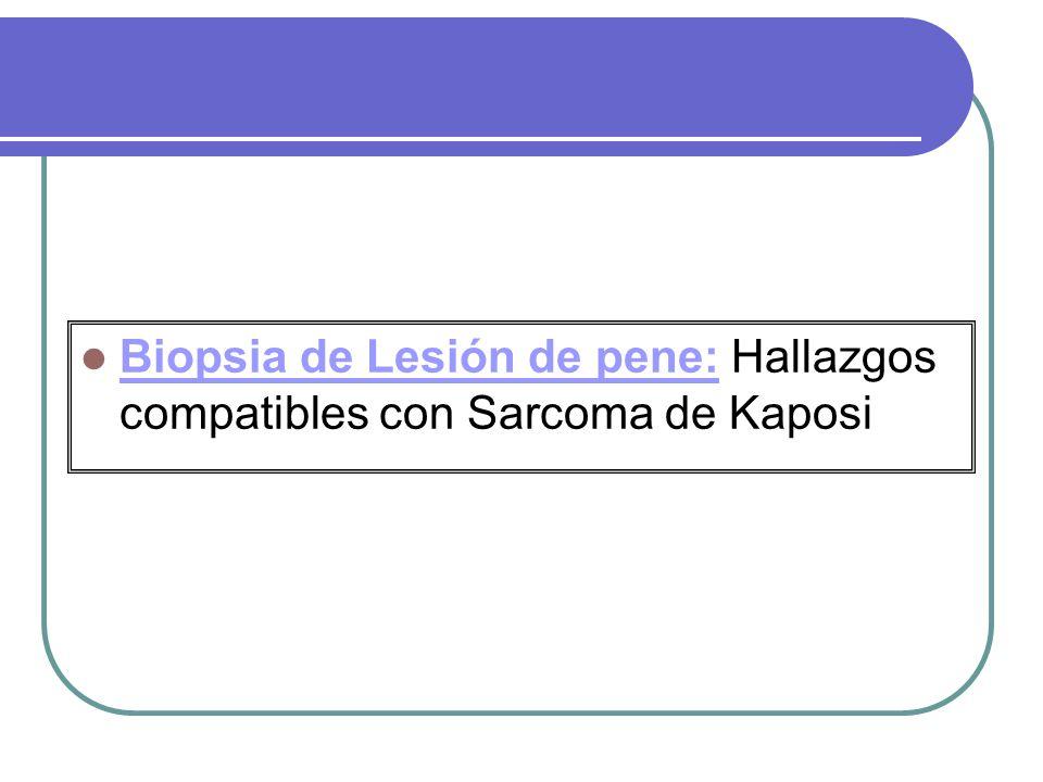Biopsia de Lesión de pene: Hallazgos compatibles con Sarcoma de Kaposi