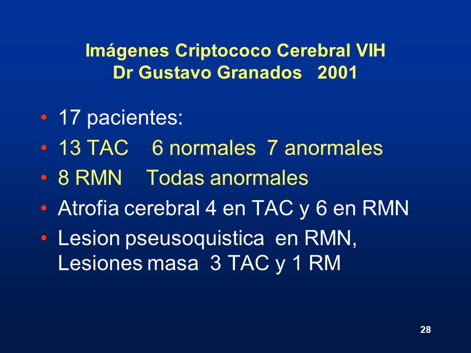 28 Imágenes Criptococo Cerebral VIH Dr Gustavo Granados 2001 17 pacientes: 13 TAC 6 normales 7 anormales 8 RMN Todas anormales Atrofia cerebral 4 en T