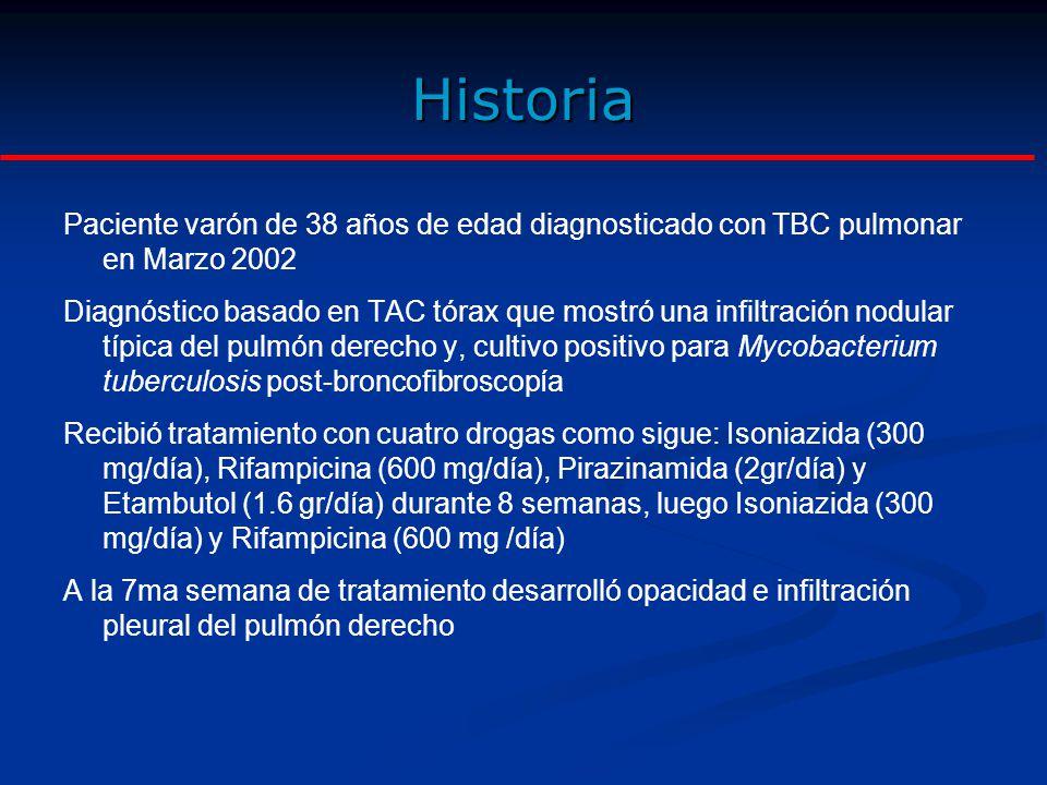 Historia Paciente varón de 38 años de edad diagnosticado con TBC pulmonar en Marzo 2002 Diagnóstico basado en TAC tórax que mostró una infiltración nodular típica del pulmón derecho y, cultivo positivo para Mycobacterium tuberculosis post-broncofibroscopía Recibió tratamiento con cuatro drogas como sigue: Isoniazida (300 mg/día), Rifampicina (600 mg/día), Pirazinamida (2gr/día) y Etambutol (1.6 gr/día) durante 8 semanas, luego Isoniazida (300 mg/día) y Rifampicina (600 mg /día) A la 7ma semana de tratamiento desarrolló opacidad e infiltración pleural del pulmón derecho