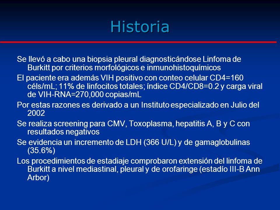 TAC de tórax en el momento de diagnóstico de Linfoma.