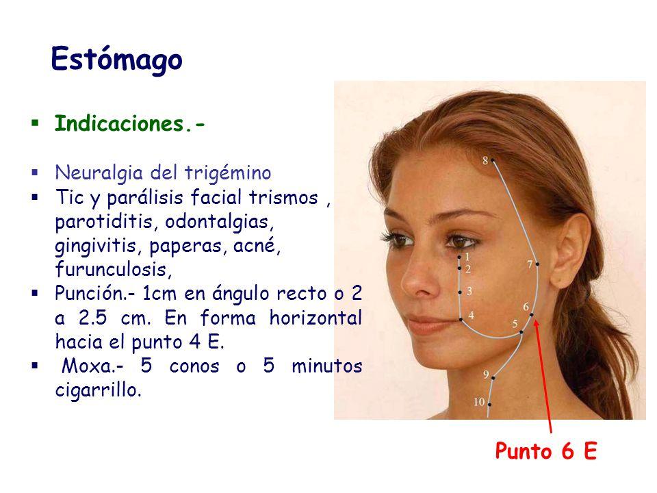 Punto 6 E Estómago Indicaciones.- Neuralgia del trigémino Tic y parálisis facial trismos, parotiditis, odontalgias, gingivitis, paperas, acné, furuncu