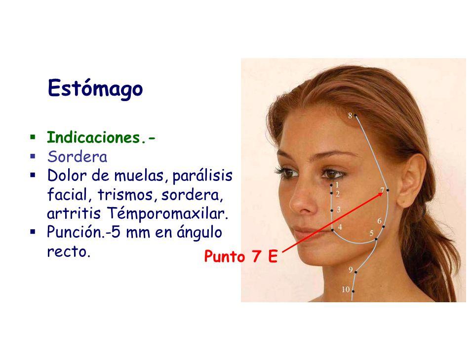 Indicaciones.- Sordera Dolor de muelas, parálisis facial, trismos, sordera, artritis Témporomaxilar. Punción.-5 mm en ángulo recto. Estómago Punto 7 E