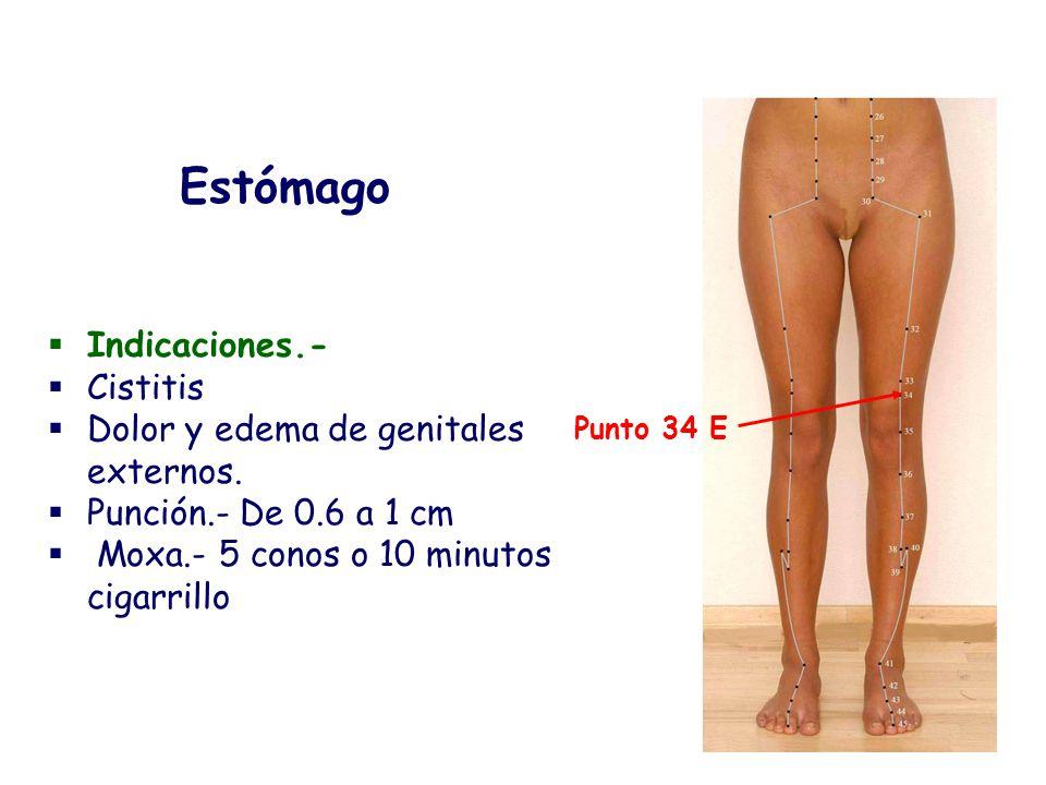Indicaciones.- Cistitis Dolor y edema de genitales externos. Punción.- De 0.6 a 1 cm Moxa.- 5 conos o 10 minutos cigarrillo Estómago Punto 34 E