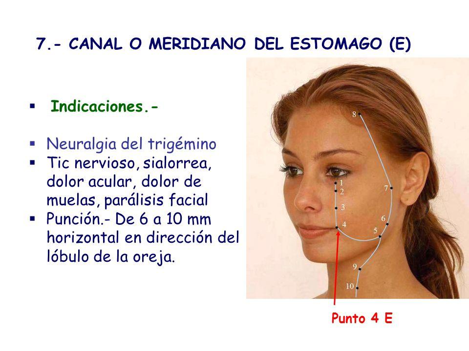 Punto 6 E Estómago Indicaciones.- Neuralgia del trigémino Tic y parálisis facial trismos, parotiditis, odontalgias, gingivitis, paperas, acné, furunculosis, Punción.- 1cm en ángulo recto o 2 a 2.5 cm.