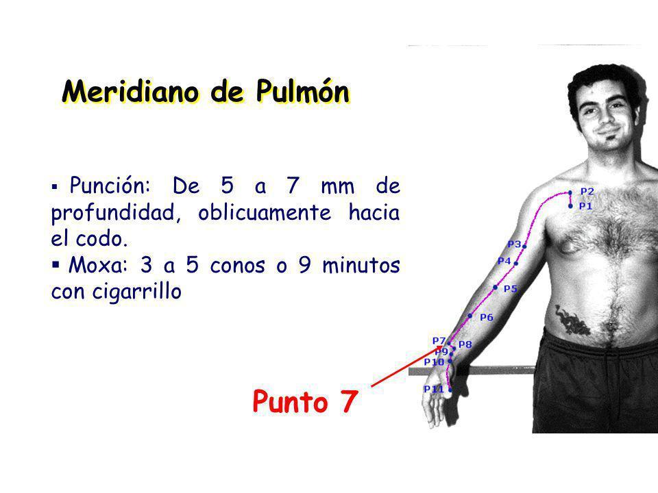 Meridiano de Pulmón Punto 7 Punción: De 5 a 7 mm de profundidad, oblicuamente hacia el codo.