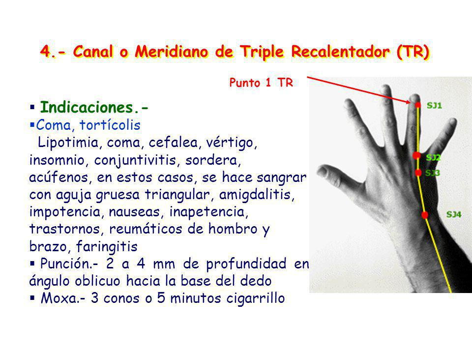 4.- Canal o Meridiano de Triple Recalentador (TR) Indicaciones.- Coma, tortícolis Lipotimia, coma, cefalea, vértigo, insomnio, conjuntivitis, sordera, acúfenos, en estos casos, se hace sangrar con aguja gruesa triangular, amigdalitis, impotencia, nauseas, inapetencia, trastornos, reumáticos de hombro y brazo, faringitis Punción.- 2 a 4 mm de profundidad en ángulo oblicuo hacia la base del dedo Moxa.- 3 conos o 5 minutos cigarrillo Punto 1 TR