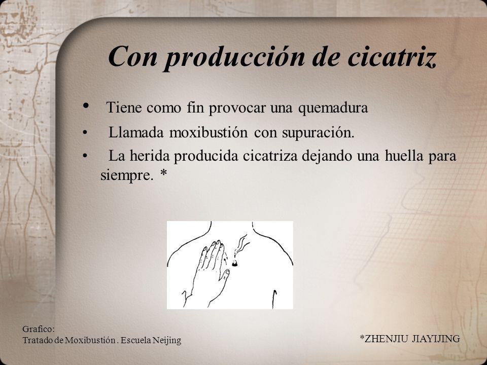 Con producción de cicatriz Tiene como fin provocar una quemadura Llamada moxibustión con supuración.