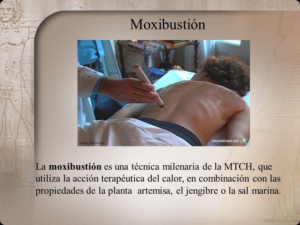 Moxibustión La moxibustión es una técnica milenaria de la MTCH, que utiliza la acción terapéutica del calor, en combinación con las propiedades de la planta artemisa, el jengibre o la sal marina.