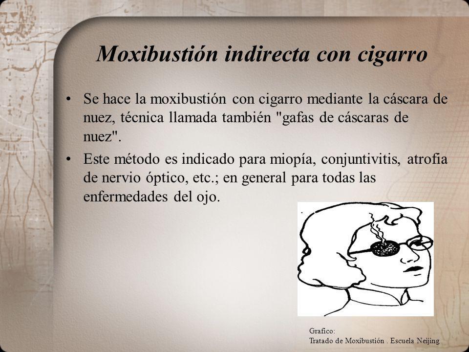 Moxibustión indirecta con cigarro Se hace la moxibustión con cigarro mediante la cáscara de nuez, técnica llamada también gafas de cáscaras de nuez .