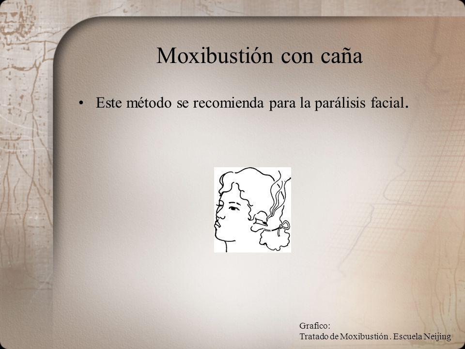 Moxibustión con caña Este método se recomienda para la parálisis facial. Grafico: Tratado de Moxibustión. Escuela Neijing