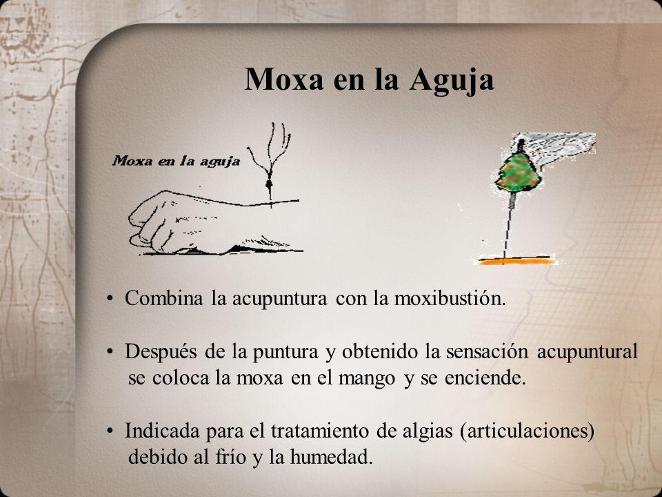 Moxa en la Aguja Combina la acupuntura con la moxibustión. Después de la puntura y obtenido la sensación acupuntural se coloca la moxa en el mango y s