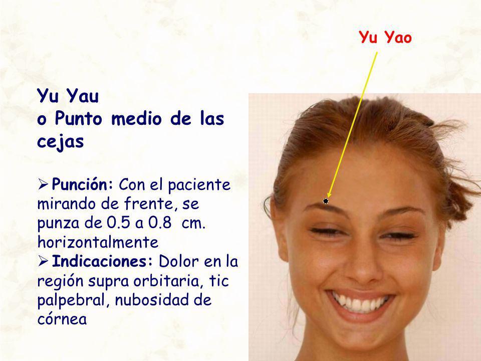 Yu Yau o Punto medio de las cejas Punción: Con el paciente mirando de frente, se punza de 0.5 a 0.8 cm. horizontalmente Indicaciones: Dolor en la regi