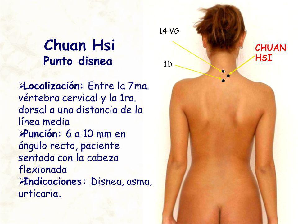 CHUAN HSI 14 VG Chuan Hsi Punto disnea Localización: Entre la 7ma. vértebra cervical y la 1ra. dorsal a una distancia de la línea media Punción: 6 a 1