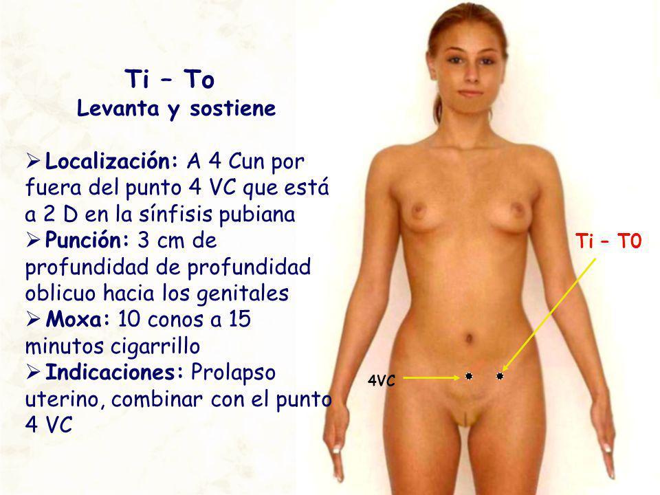 Ti – T0 Ti – To Levanta y sostiene Localización: A 4 Cun por fuera del punto 4 VC que está a 2 D en la sínfisis pubiana Punción: 3 cm de profundidad d