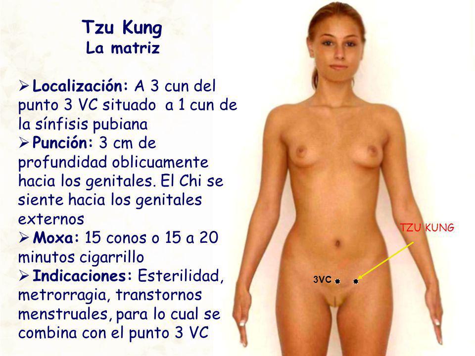 TZU KUNG 3VC Tzu Kung La matriz Localización: A 3 cun del punto 3 VC situado a 1 cun de la sínfisis pubiana Punción: 3 cm de profundidad oblicuamente