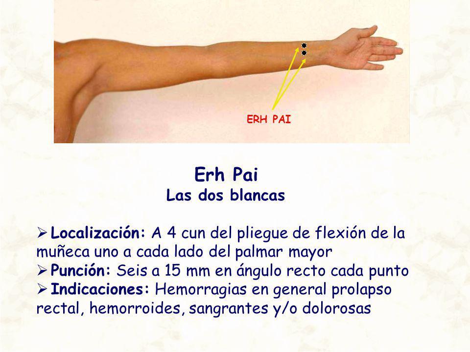 Erh Pai Las dos blancas Localización: A 4 cun del pliegue de flexión de la muñeca uno a cada lado del palmar mayor Punción: Seis a 15 mm en ángulo rec