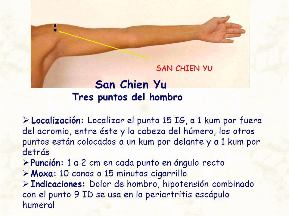 SAN CHIEN YU San Chien Yu Tres puntos del hombro Localización: Localizar el punto 15 IG, a 1 kum por fuera del acromio, entre éste y la cabeza del húm
