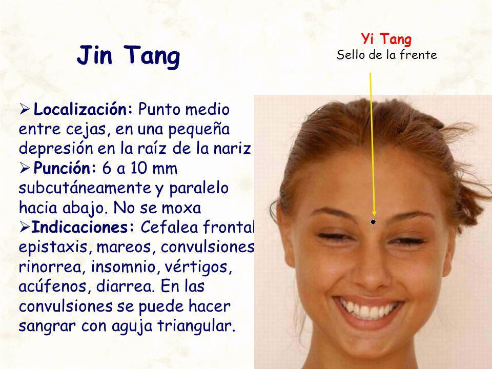 Jin Tang Localización: Punto medio entre cejas, en una pequeña depresión en la raíz de la nariz Punción: 6 a 10 mm subcutáneamente y paralelo hacia ab