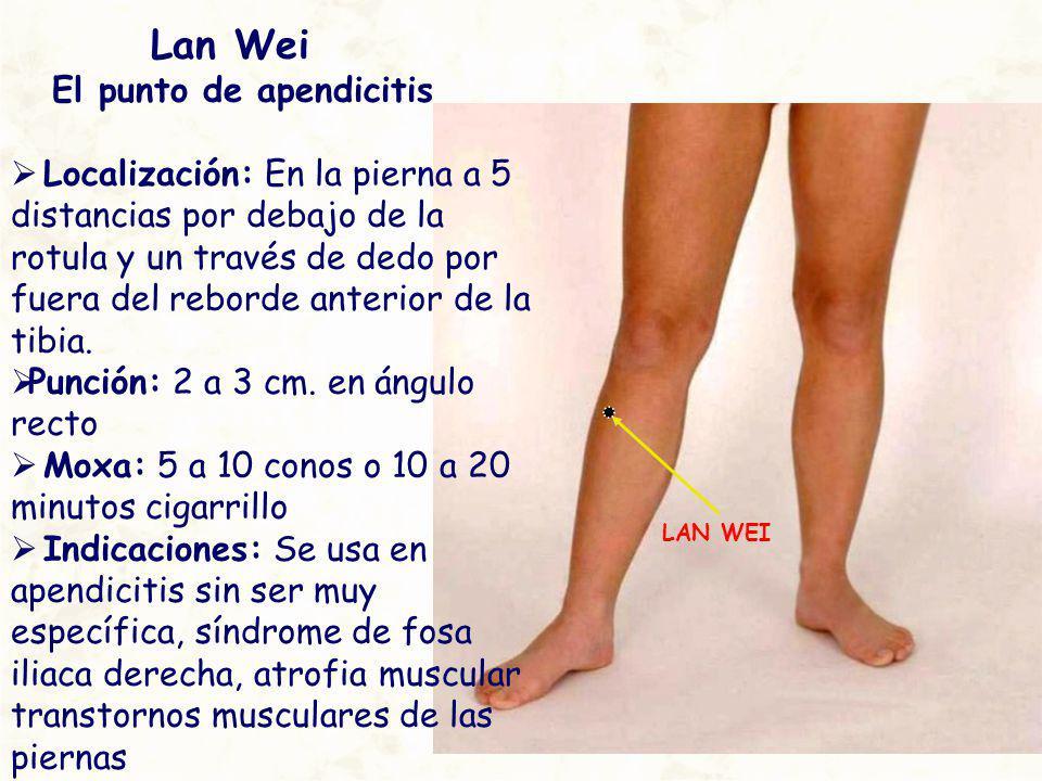 LAN WEI Lan Wei El punto de apendicitis Localización: En la pierna a 5 distancias por debajo de la rotula y un través de dedo por fuera del reborde an