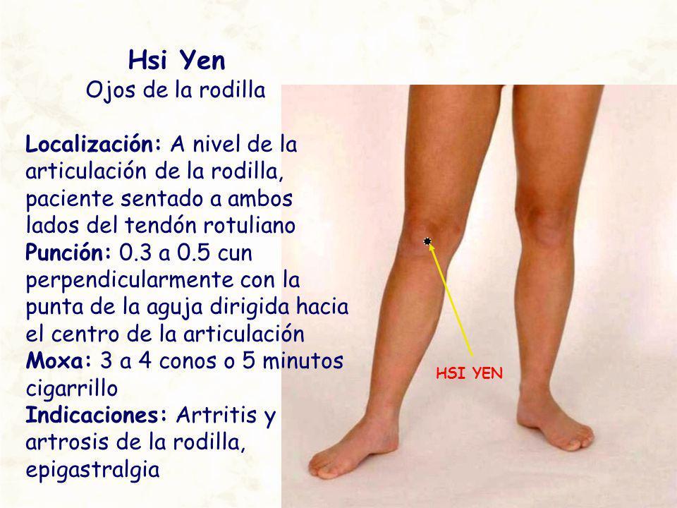 HSI YEN Hsi Yen Ojos de la rodilla Localización: A nivel de la articulación de la rodilla, paciente sentado a ambos lados del tendón rotuliano Punción