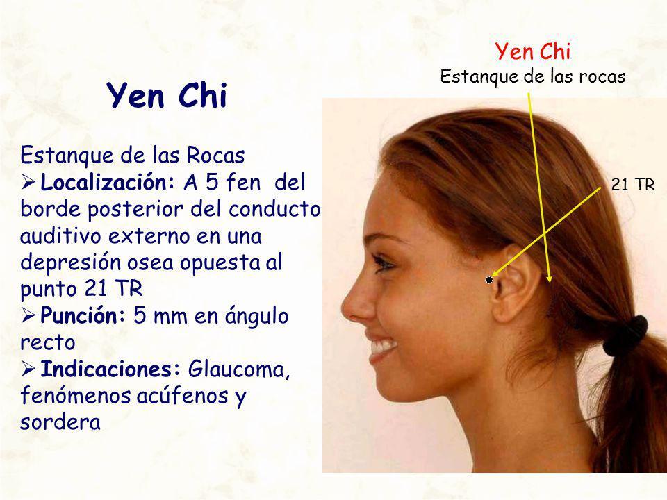 Yen Chi Estanque de las Rocas Localización: A 5 fen del borde posterior del conducto auditivo externo en una depresión osea opuesta al punto 21 TR Pun