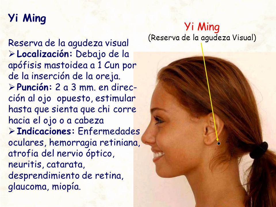 Yi Ming (Reserva de la agudeza Visual) Yi Ming Reserva de la agudeza visual Localización: Debajo de la apófisis mastoidea a 1 Cun por de la inserción