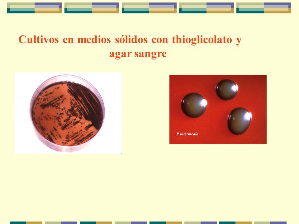 Cultivos en medios sólidos con thioglicolato y agar sangre