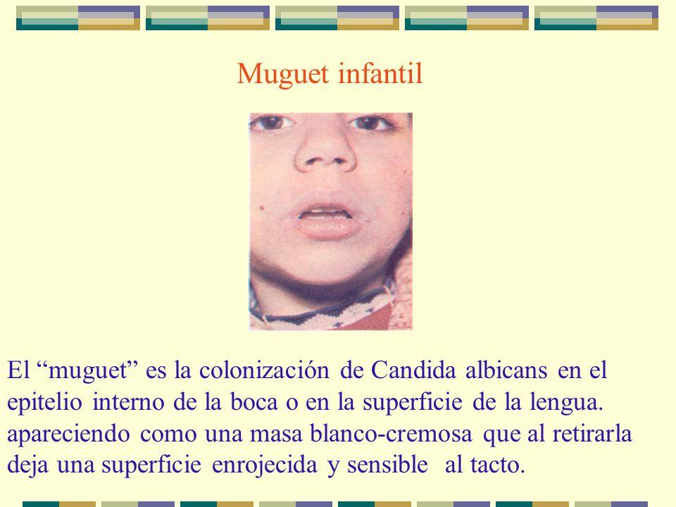 Muguet infantil El muguet es la colonización de Candida albicans en el epitelio interno de la boca o en la superficie de la lengua. apareciendo como u