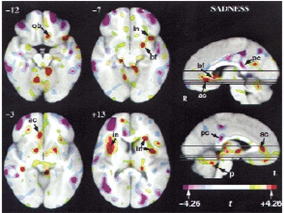 Actividad cerebral cortical y Subcortical durante los sentimientos y emociones autogeneradas Nature Neuroscience volume 3 no 10 october 2000 Antonio R