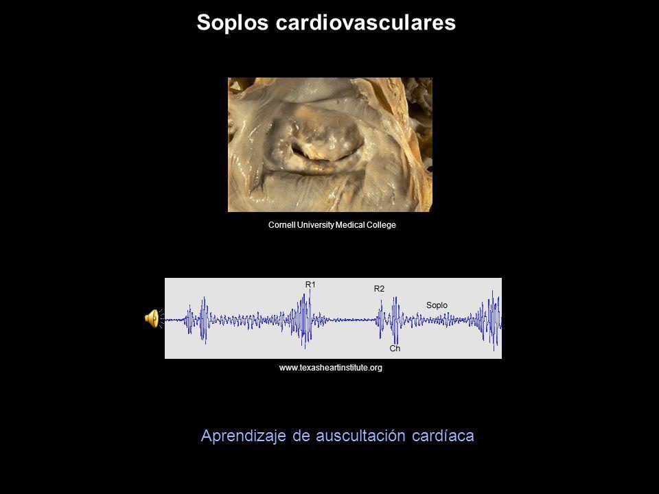 Soplos cardiovasculares Cornell University Medical College www.texasheartinstitute.org Aprendizaje de auscultación cardíaca