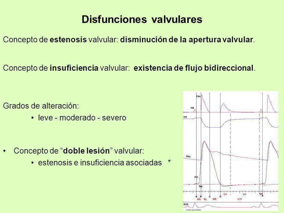 Disfunciones valvulares Concepto de estenosis valvular: disminución de la apertura valvular. Concepto de insuficiencia valvular: existencia de flujo b