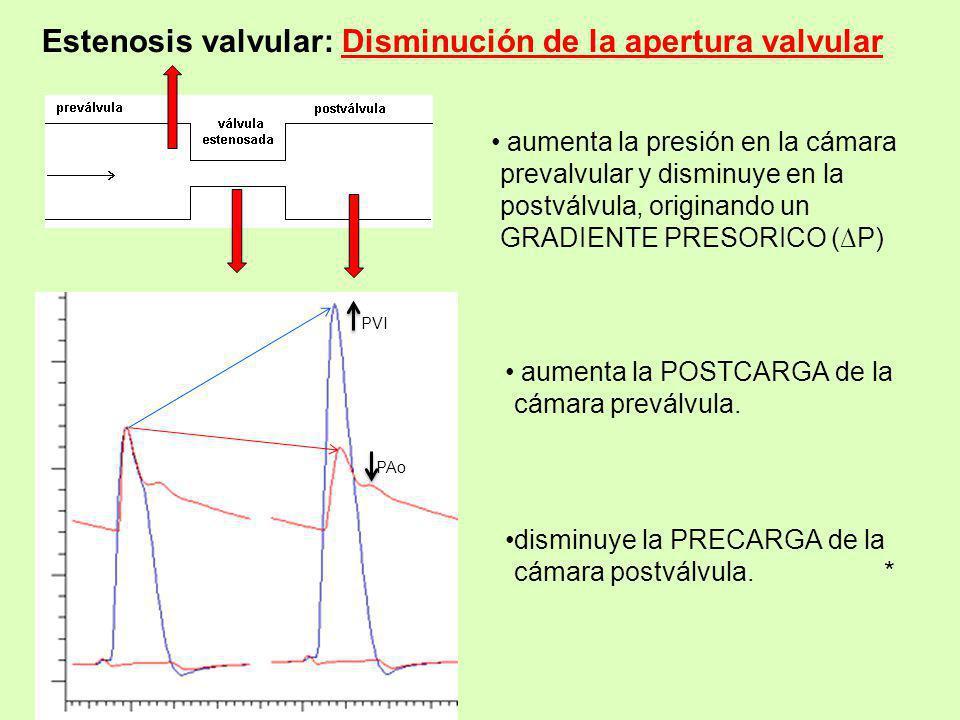 Estenosis valvular: Disminución de la apertura valvular aumenta la presión en la cámara prevalvular y disminuye en la postválvula, originando un GRADI