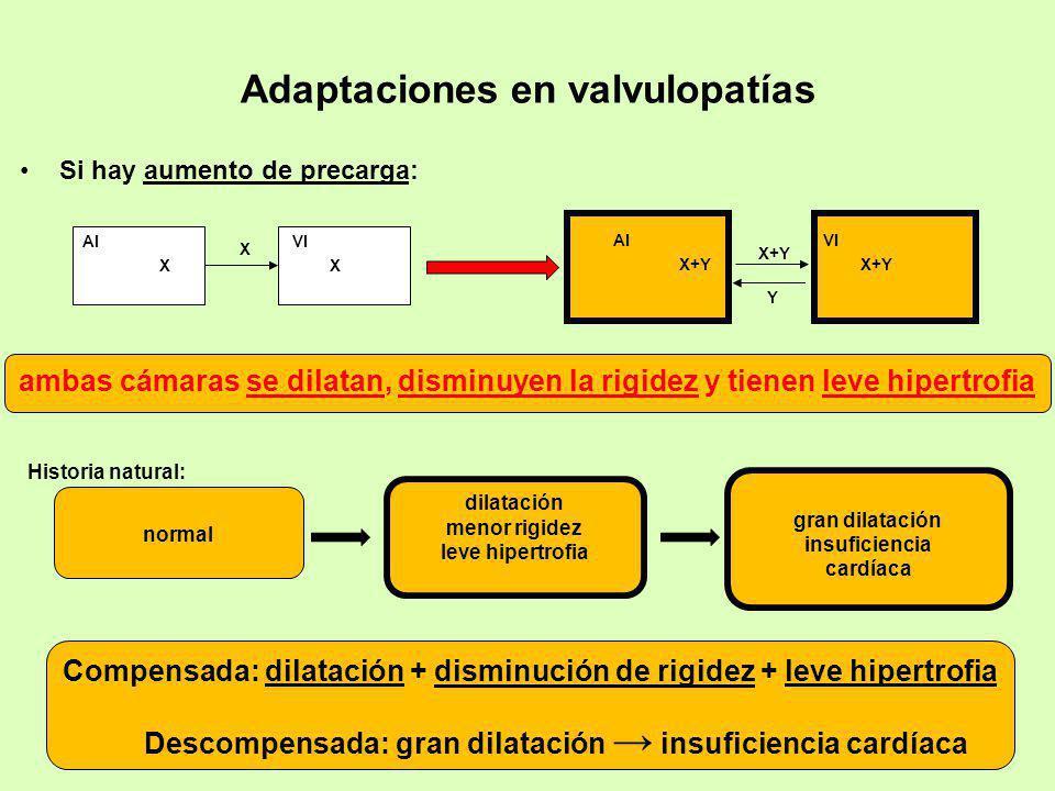 Adaptaciones en valvulopatías Si hay aumento de precarga: X+Y AIVI X+Y Y XX AIVI X Compensada: dilatación + disminución de rigidez + leve hipertrofia