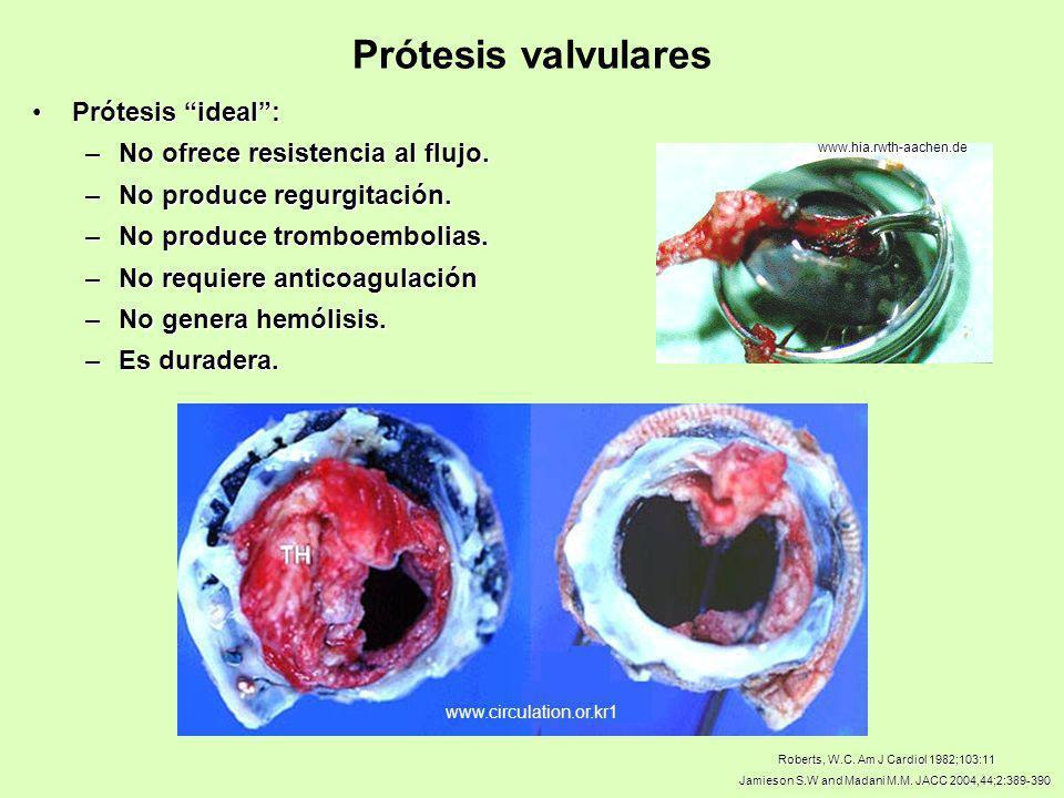 Prótesis ideal:Prótesis ideal: –No ofrece resistencia al flujo. –No produce regurgitación. –No produce tromboembolias. –No requiere anticoagulación –N